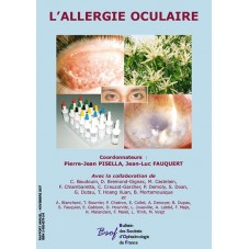 L'Allergie Oculaire