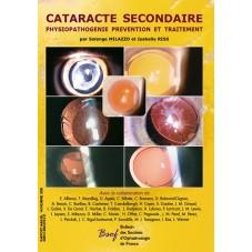 Cataracte Secondaire