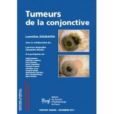 TUMEURS DE LA CONJONCTIVE