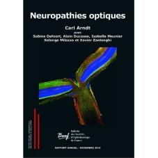eBook Neuropathies optiques